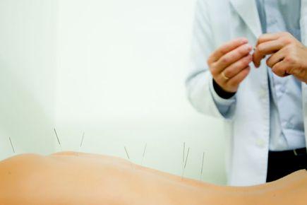 Akupunktura skuteczniejsza od farmakologii