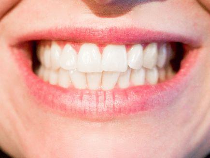 Piękne i proste zęby - jak je uzyskać?