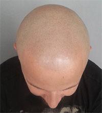 Jak zwalczyć łysienie androgenowe? 1 skuteczny sposób.