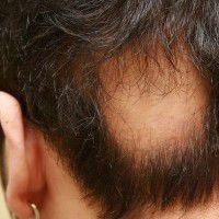 Choroba grzybicza włosów (Objawy i leczenie)
