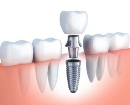 Czy warto zdecydować się na implant zęba?