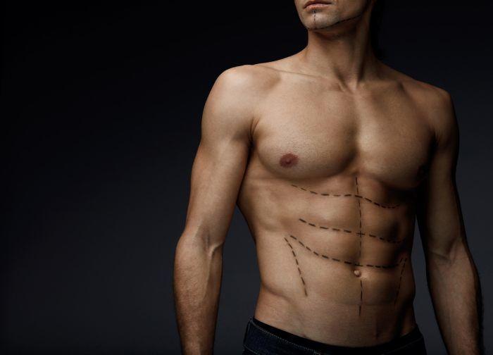 Liposukcja- kiedy warto się na nią zdecydować i jaki zabieg wybrać?