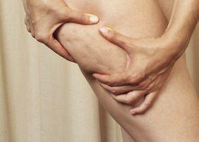 Cellulit - dlaczego powstaje i jak z nim walczyć?