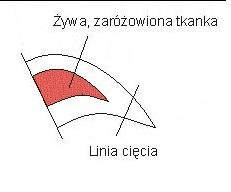 obcinanie_pazura