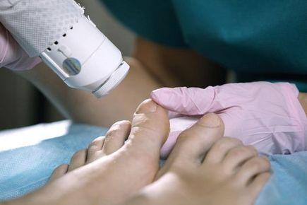 Grzybica paznokci – przyczyny, objawy oraz leczenie