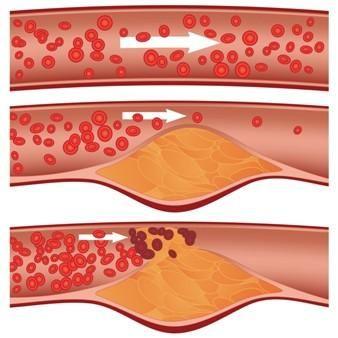 Wpływ odżywiania na poziom cholesterolu