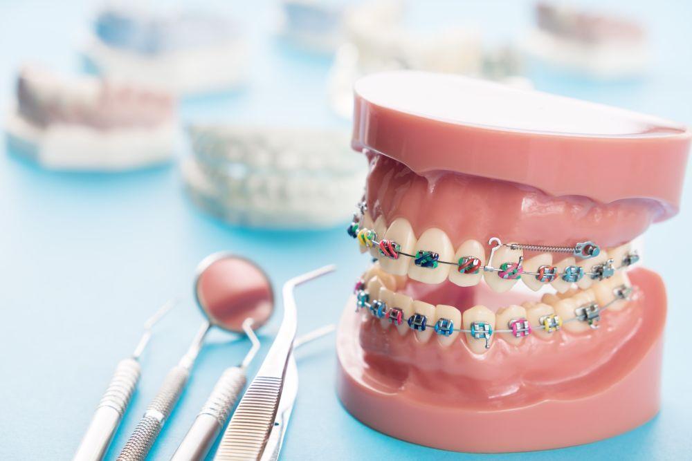 Kiedy warto iść do ortodonty?