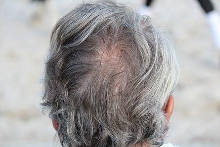 Dlaczego włosy się przetłuszczają?