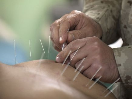 Medycyna niekonwencjonalna - akupunktura