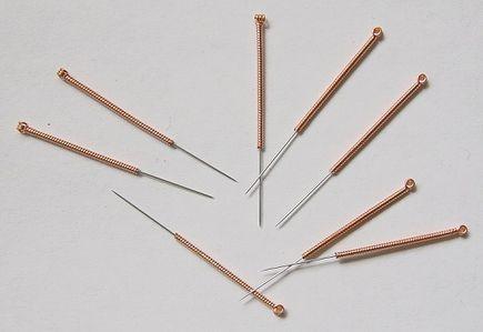 Jak działa akupunktura