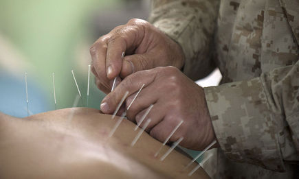 Akupunktura metodą równowagi - natychmiastowe usuwanie bólu