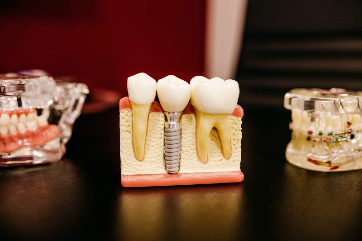 Czym jest endodoncja? Leczenie kanałowe—wskazania do leczenia i leczenie